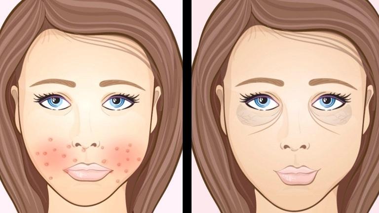 Il viso è lo specchio della nostra salute: ecco a cosa stare attenti