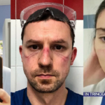 I volti di medici e infermieri deformati dopo ore di servizio a pazienti affetti da coronavirus